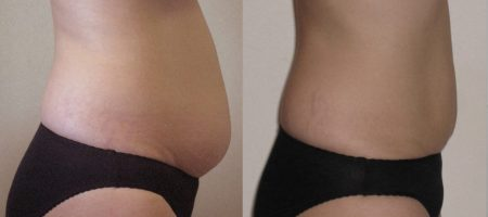 Inch Loss Before and After 09